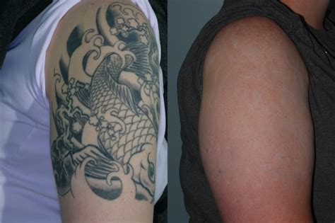 tattoo removal with salt laser removal picosure and fotona qx max laser