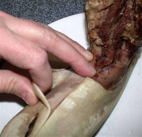 Tongue Shedding by Boiled Beef Tongue Peeling