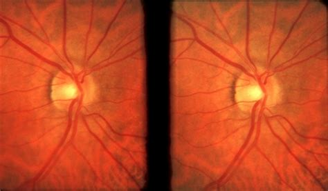 fundus photography overview ophthalmic photographers