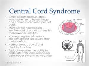 gallery for gt central cord syndrome mechanism of injury