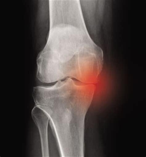 inner tear medial meniscus tears made easy mike