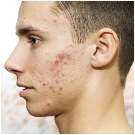 Can Detox Cause Pimples On by Acne Symptoms Causes Treatment Home Remedies