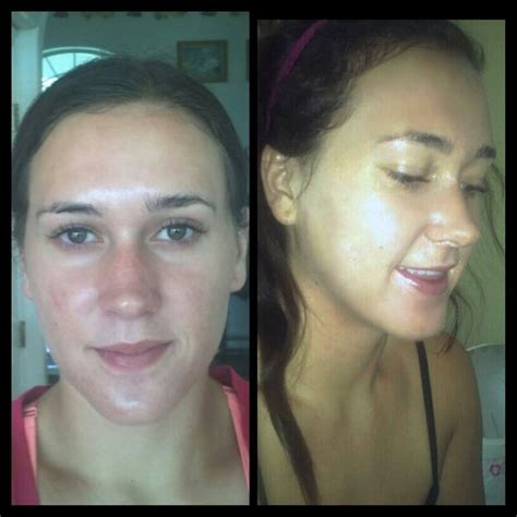 Tca 20 Cairan Peeling 100ml before and after of a tca and sal 20 peel from glymed plus what a difference this makes for