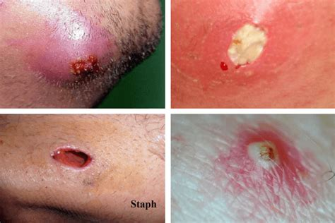 do you know how to reduce ingrown facial hair beauty infected ingrown hair causes pictures cysts staph