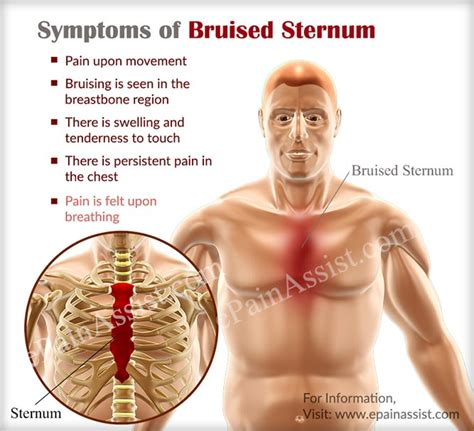 healing time for bruised ribs general center bruised sternum causes signs symptoms treatment home remedies