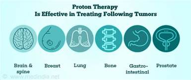 Proton Therapy Esophageal Cancer Proton Beam Therapy For Cancer Treatment