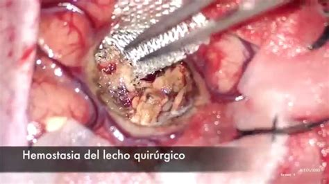 angioma alla testa angioma cavernoso
