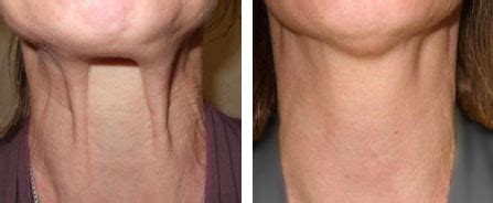 best haircut for joules and sagging neck jowl tightening nefertiti lift treatment neck fillers