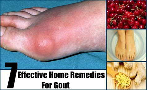 gout ankle home remedies diet to reduce gout normal uric
