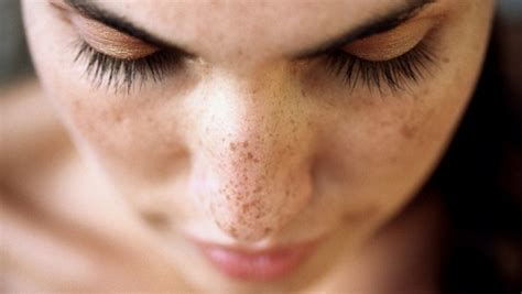 how get rid of dark spots amp blemishes 19 home remedies