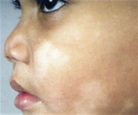 how to get rid of light spots on face white patches on face causes treatment and how to get rid