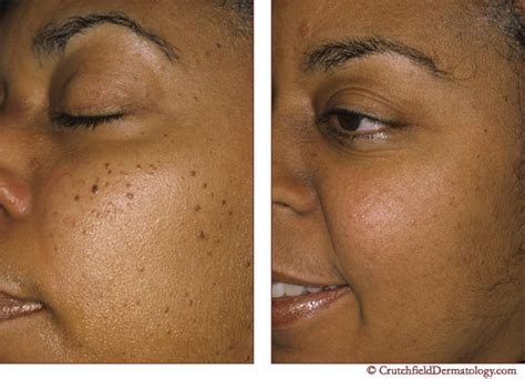 image gallery mole removal at home