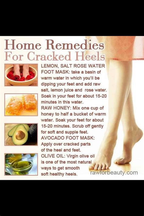 home remedies for cracked heels musely