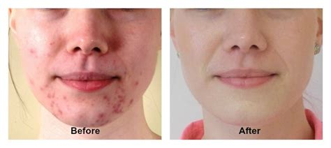 Phitocell Serum Phito Cell Serum Apel the ultimate guide to use argan for acne spots scars