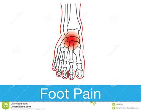 douleur de pied illustration de vecteur image 63859165