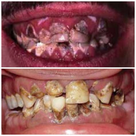 bad teeth diet coke not as bad as meth the atlantic