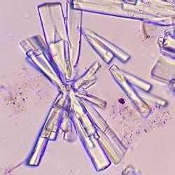 calcium phosphate crystals are normal in urine appearance