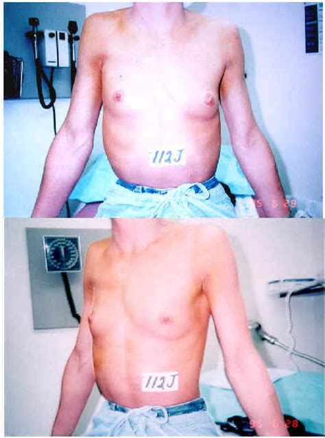 Mammary Hypoplasia Pictures