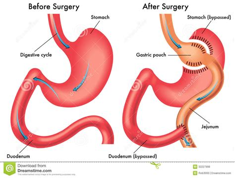 gastric bypass diagram before after surgery gastric bypass anatomy pouch stomach