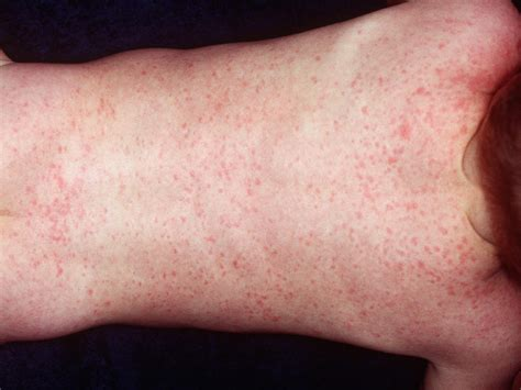 skin conditions rashes