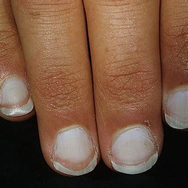 brittle nails point to thyroid problem the peoples pharmacy 9 things your fingernails reveal about your health the