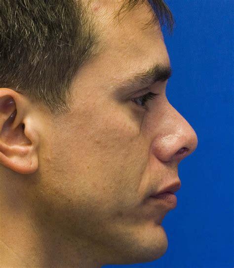 pug nasal surgery upturned tip rhinoplasty in seattle rhinoplasty surgeon