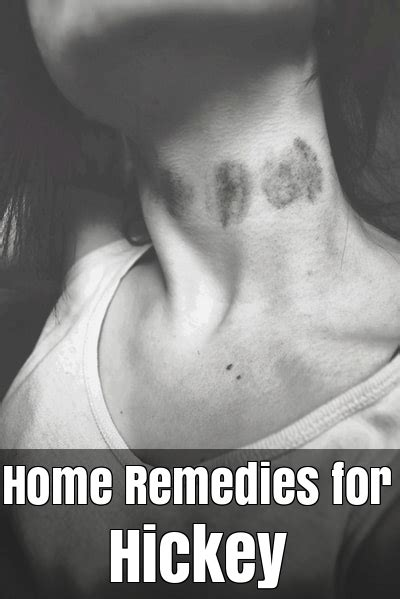 how to get rid of a hickey fast 11 home remedies for hickey