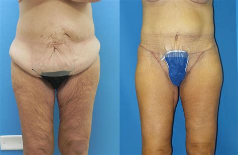 weight loss spa chicago how lift before after photos chicago mae plastic surgery