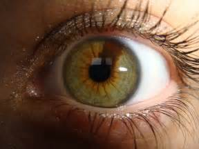 hazel eye color birthmark in eye meaning sectoral heterochromia birthmark