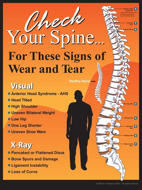 Chiropractic Giveaways - posture poster metro marketing chiropractic posture poster
