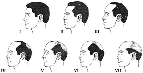 men hairline types what are the indian hair care secrets quora