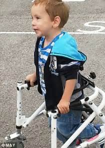 Boy Born With Cerebral Palsy Takes His First Steps At The Leg By Aiiden