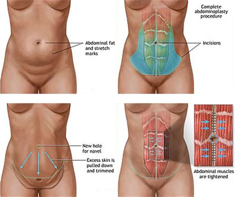 numbness in lower abdomen after c section c section before and after weight loss before and after