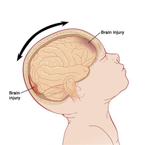 Baby Brain by Shaken Baby Statistics Statistic Brain