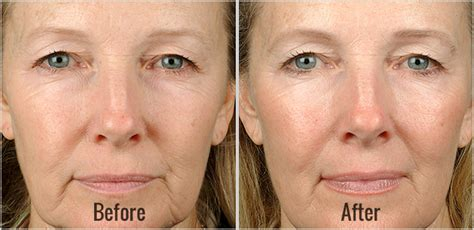 contour sagging jowls thermage before and after