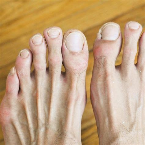 Nail Problems by 140 Best Images About Foot Toe Info On Foot