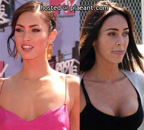 Designer Cosmetic Surgery Craze Newsvine Fashion 3 by 17 Best Images About On The Web On The