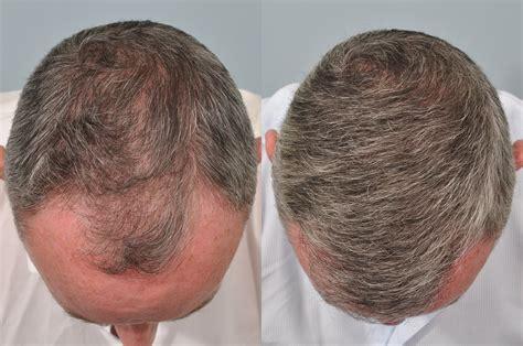 faq main hair loss hair transplant and restoration hair transplant 6 months post op hrbr hair clinic