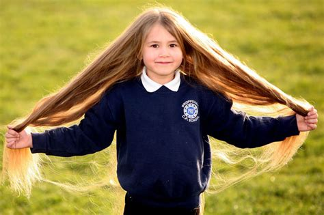 how to grow hair kemdrick real life rapunzel treatment for rare illness causes girl