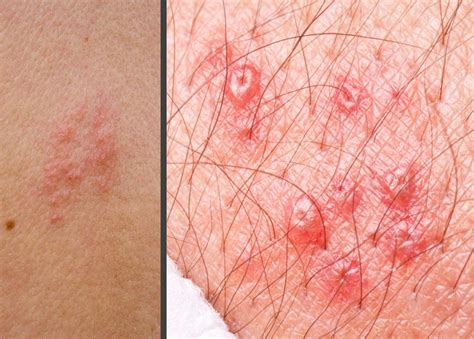 herpes in the groin area do you have pictures of shingles in the groin area