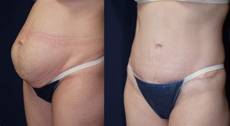 plastic surgery during c section can you have a tummy tuck during c section 28 images