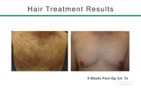 laser hair removal south jersey hairstyle gallery permanent laser hair removal bergen county nj hair laser