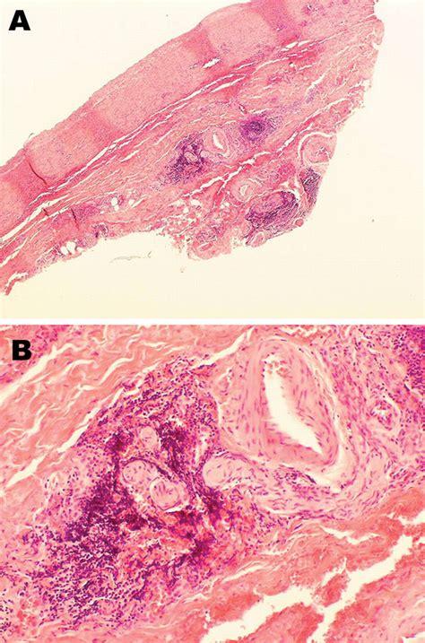 Journal Of An Aleutian Year figure 1 aleutian mink disease virus and humans volume