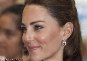 kate middleton s nose meet the women who ve paid