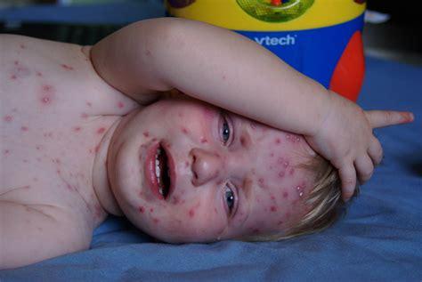 tumore alla testa come si manifesta malattie esantematiche dei bambini la varicella cos 232