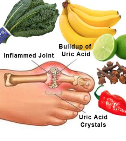 Familydr Uric Acid best gout remedies for prevention and treatment dr recommended naturalgoutremedies