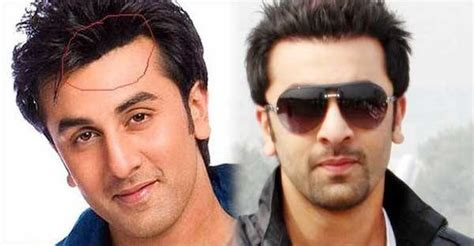 ranbir kapoor hair transplant male celebrities who have undergone plastic surgery and