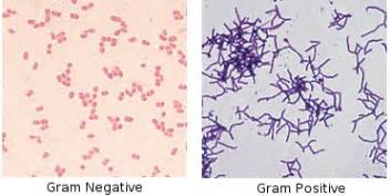 what color does gram positive bacteria stain sgugenetics copy of escherichia
