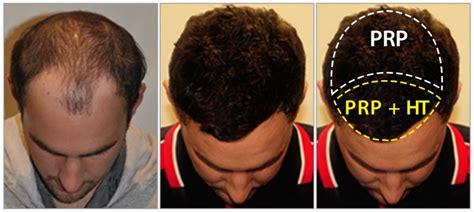 prp for hair loss 100 money back guarantee prp hair regrowth treatment 100 money back guaranteed