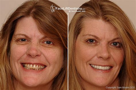 A Facelift For Your Teeth by Receding Gums Treatment